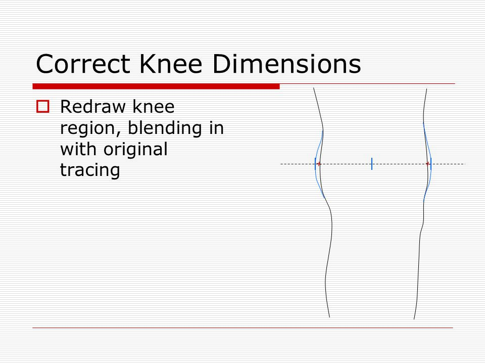 Knee Joints  Measure out 1/4 medially and 1/8 laterally for minimum knee joint clearance 1/8 1/4