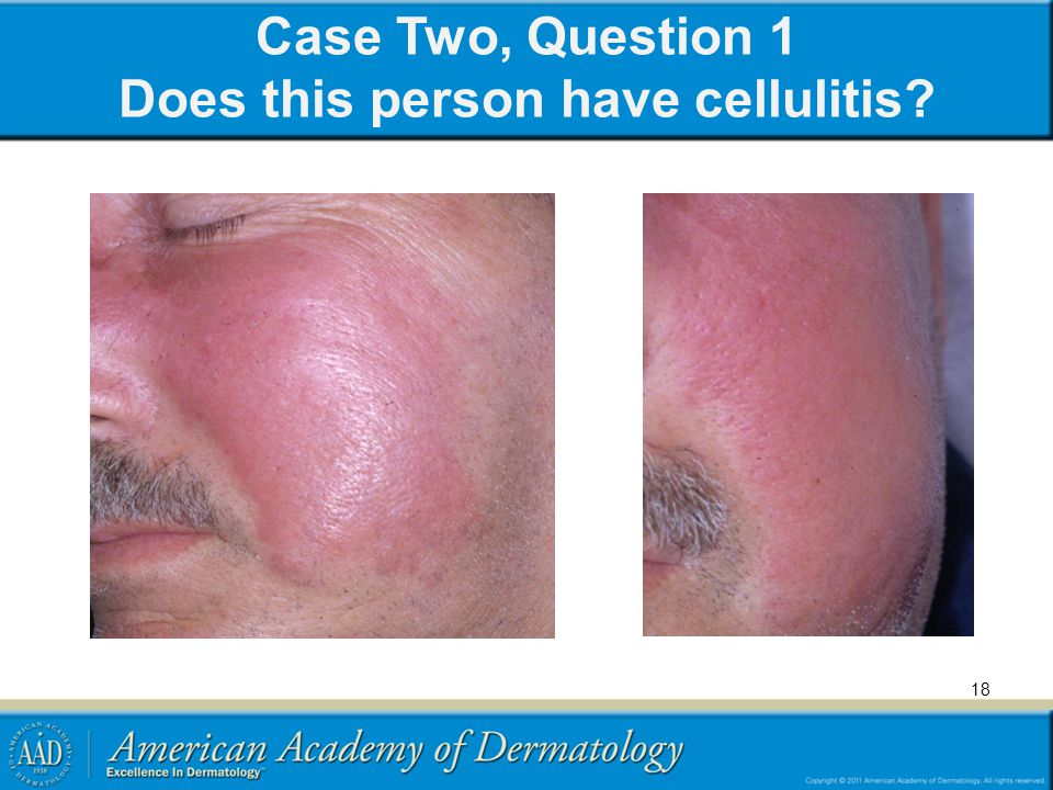 Case Two, Question 1 Does this person have cellulitis? 18