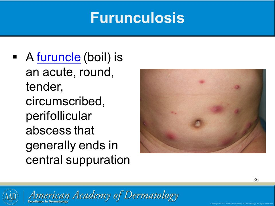 Furunculosis  A furuncle (boil) is an acute, round, tender, circumscribed, perifollicular abscess that generally ends in central suppurationfuruncle