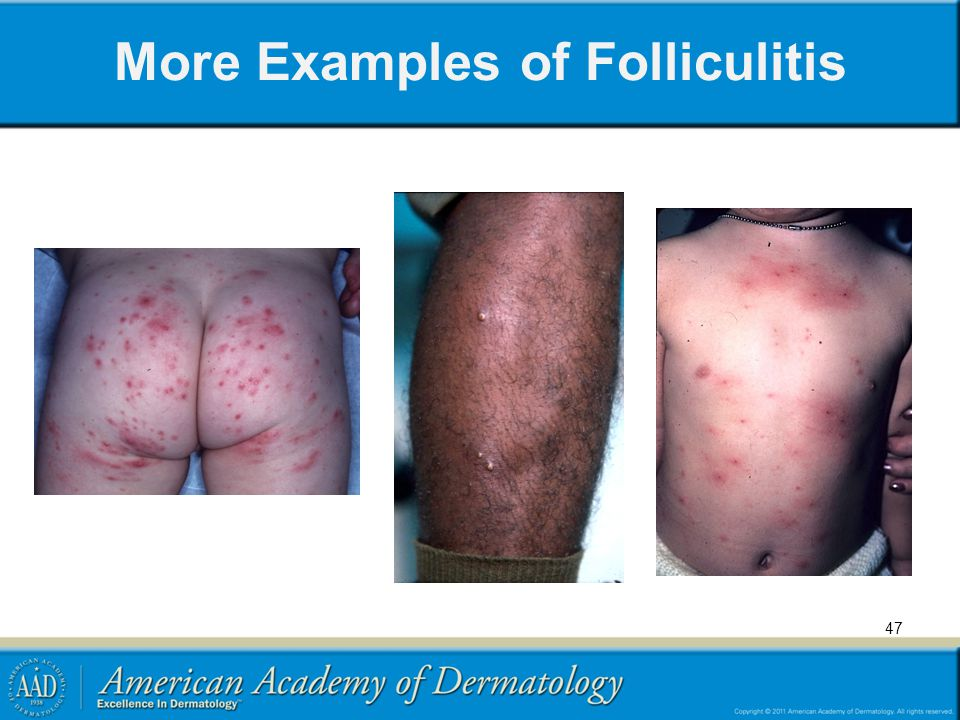 More Examples of Folliculitis 47