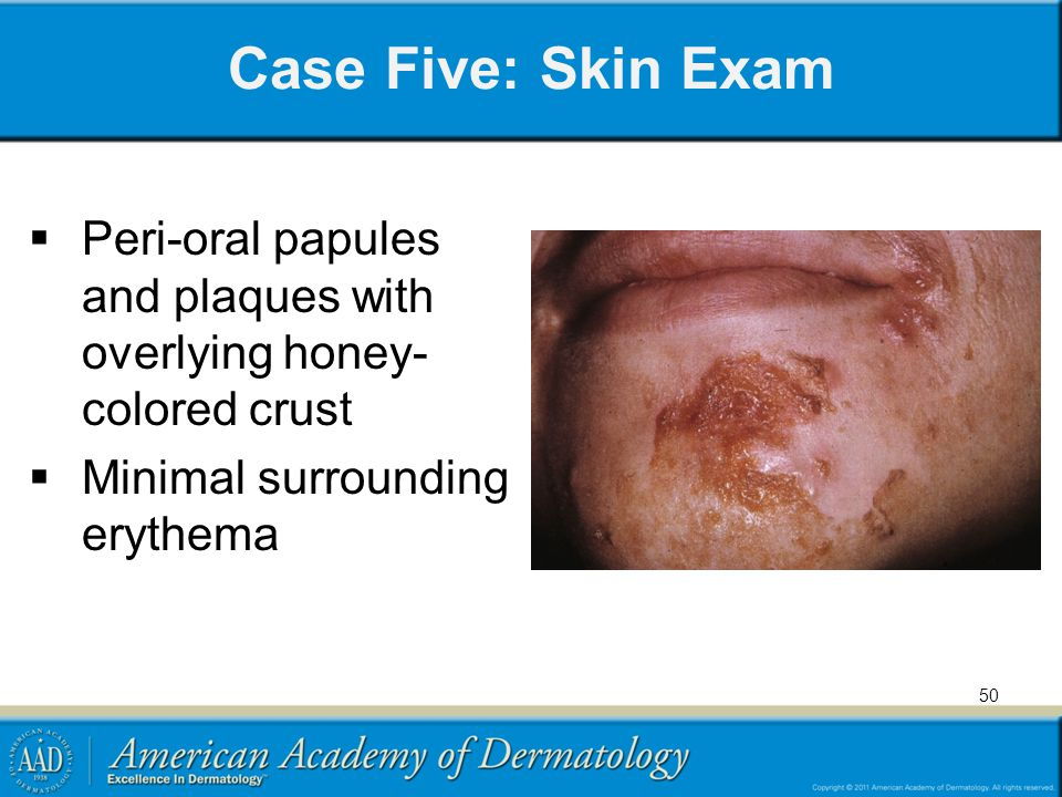 Case Five: Skin Exam  Peri-oral papules and plaques with overlying honey- colored crust  Minimal surrounding erythema 50