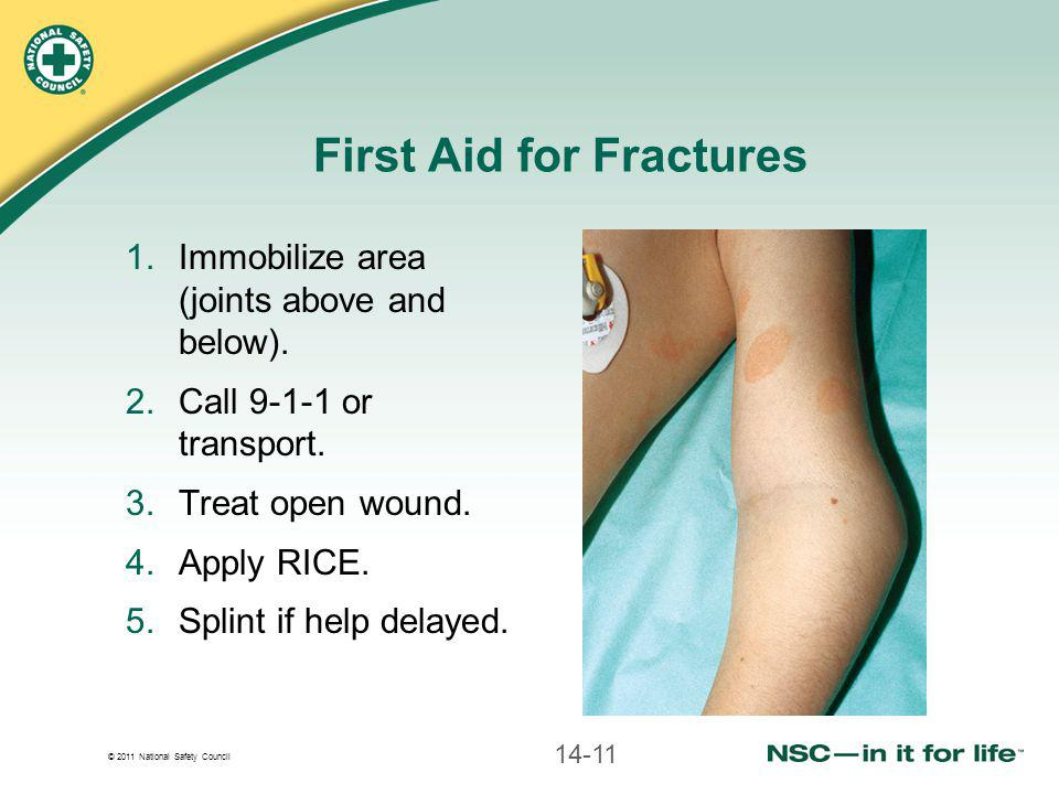 © 2011 National Safety Council First Aid for Fractures 1.Immobilize area (joints above and below). 2.Call 9-1-1 or transport. 3.Treat open wound. 4.Ap