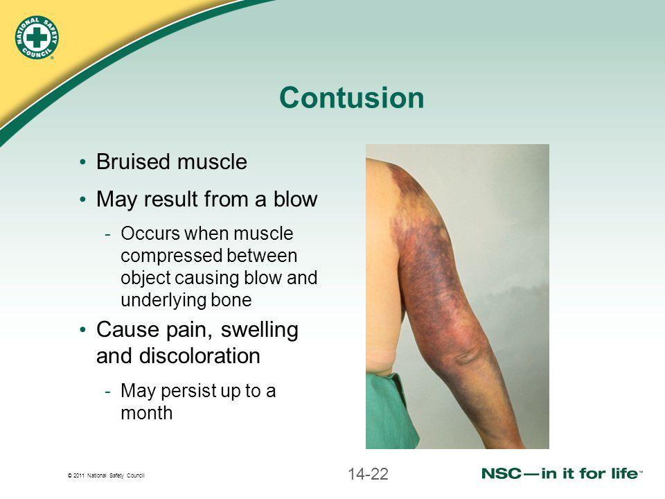 © 2011 National Safety Council Contusion Bruised muscle May result from a blow -Occurs when muscle compressed between object causing blow and underlyi