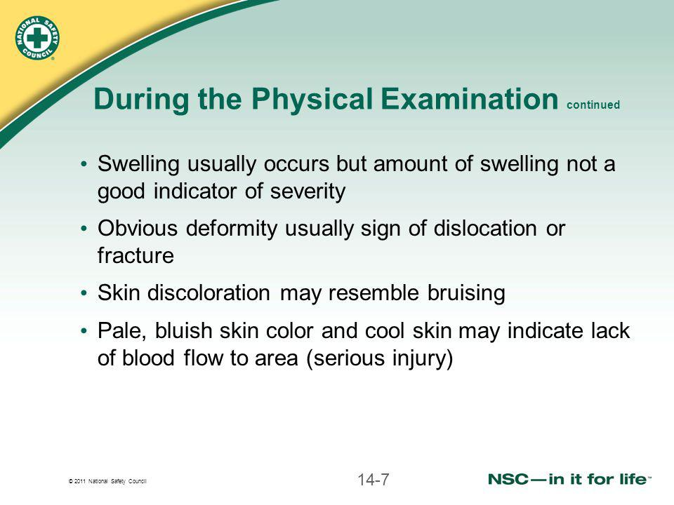© 2011 National Safety Council During the Physical Examination continued Swelling usually occurs but amount of swelling not a good indicator of severi