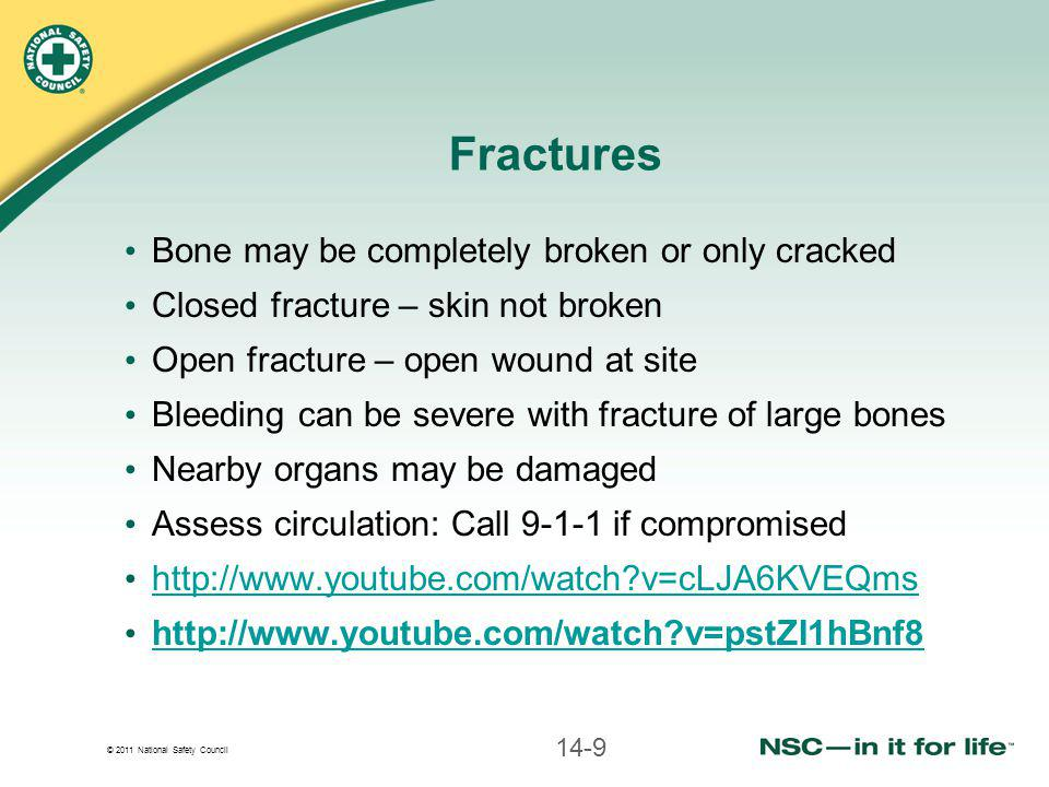 © 2011 National Safety Council Fractures Bone may be completely broken or only cracked Closed fracture – skin not broken Open fracture – open wound at site Bleeding can be severe with fracture of large bones Nearby organs may be damaged Assess circulation: Call 9-1-1 if compromised http://www.youtube.com/watch?v=cLJA6KVEQms http://www.youtube.com/watch?v=pstZI1hBnf8 14-9