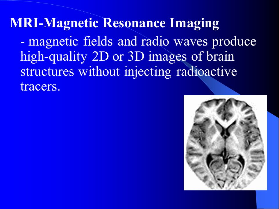 MRI-Magnetic Resonance Imaging - magnetic fields and radio waves produce high-quality 2D or 3D images of brain structures without injecting radioactiv