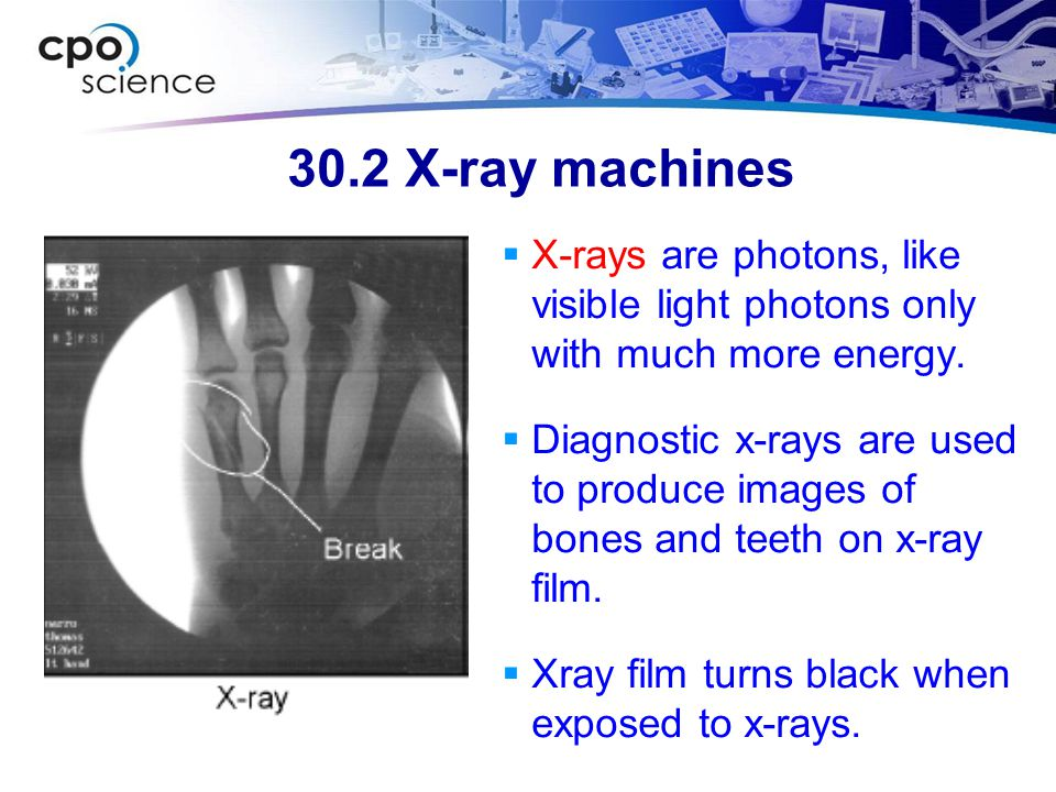 30.2 X-ray machines  X-rays are photons, like visible light photons only with much more energy.  Diagnostic x-rays are used to produce images of bon