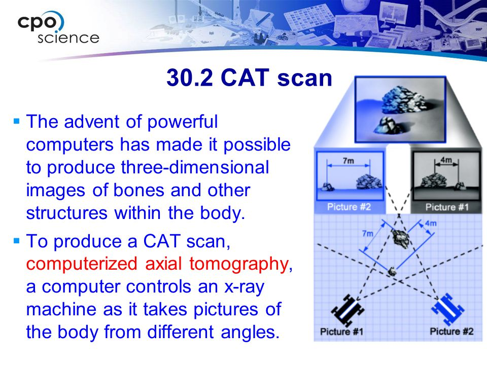 30.2 CAT scan  The advent of powerful computers has made it possible to produce three-dimensional images of bones and other structures within the bod