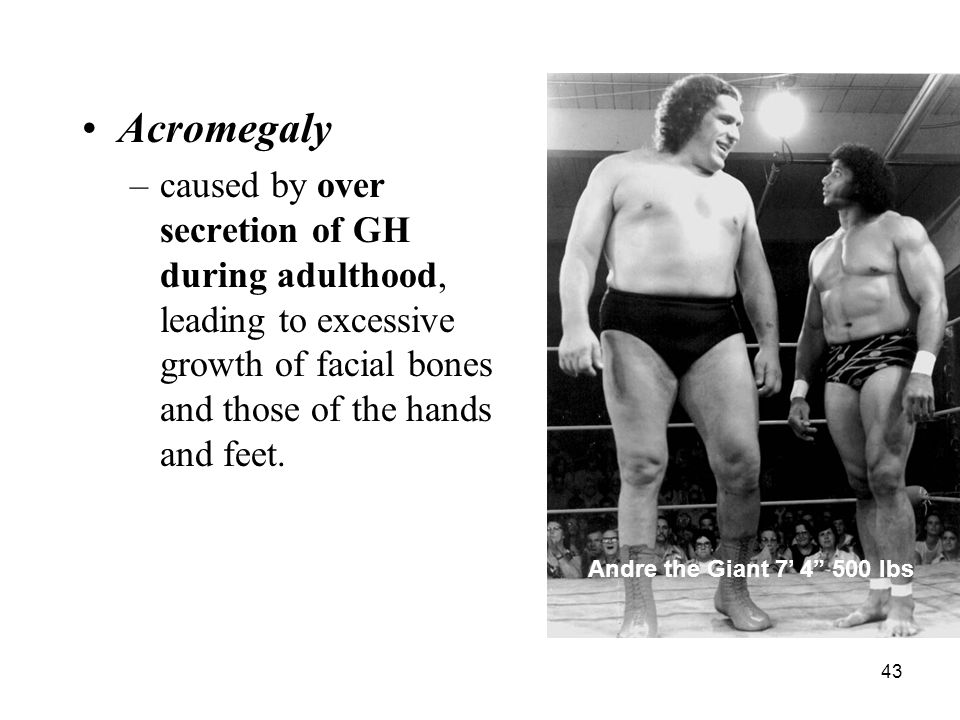 43 Acromegaly –caused by over secretion of GH during adulthood, leading to excessive growth of facial bones and those of the hands and feet. Andre the
