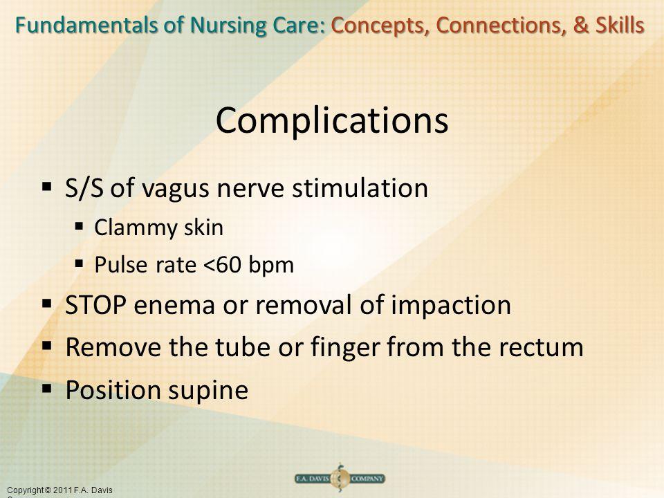 Fundamentals of Nursing Care: Concepts, Connections, & Skills Copyright © 2011 F.A. Davis Company Complications  S/S of vagus nerve stimulation  Cla