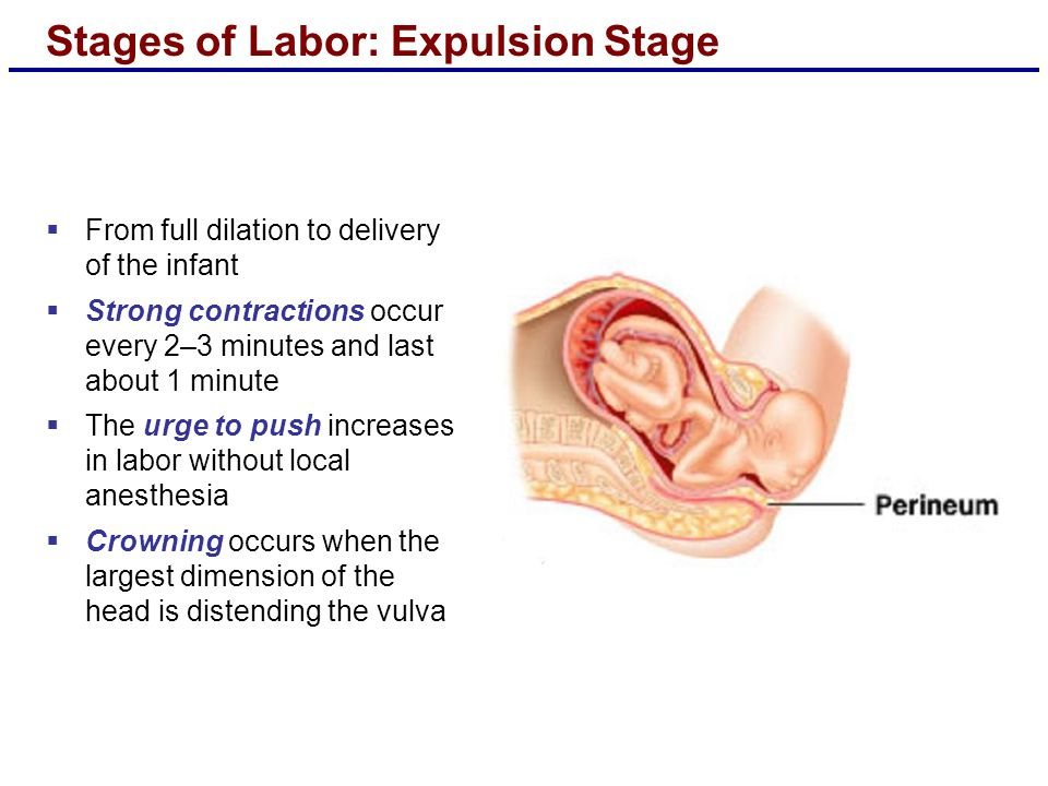 Stages of Labor: Expulsion Stage  From full dilation to delivery of the infant  Strong contractions occur every 2–3 minutes and last about 1 minute  The urge to push increases in labor without local anesthesia  Crowning occurs when the largest dimension of the head is distending the vulva