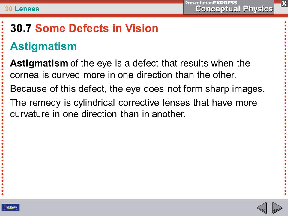 30 Lenses Astigmatism Astigmatism of the eye is a defect that results when the cornea is curved more in one direction than the other. Because of this