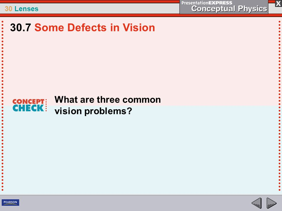 30 Lenses What are three common vision problems? 30.7 Some Defects in Vision