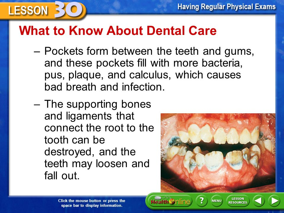 What to Know About Dental Care Periodontal disease –Periodontal disease is a disease of the gums and other tissues supporting the teeth. –The early st