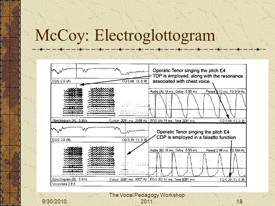 McCoy: Electroglottogram The Vocal Pedagogy Workshop 20119/30/201018