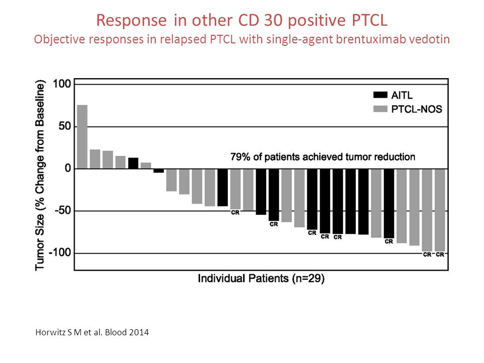 Response in other CD 30 positive PTCL Objective responses in relapsed PTCL with single-agent brentuximab vedotin Horwitz S M et al. Blood 2014