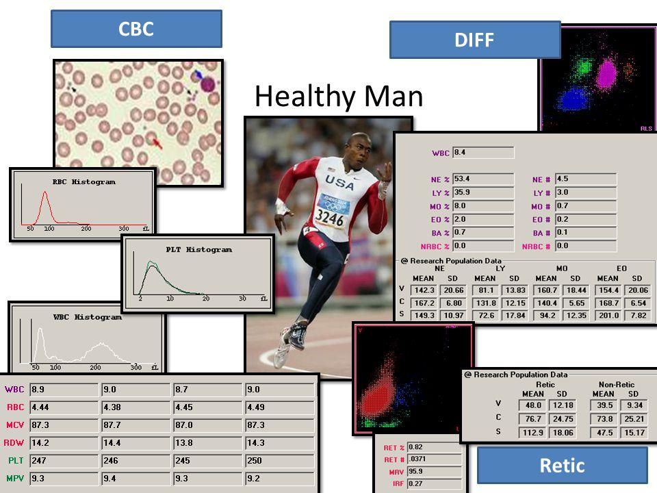 Results – 43 yrs Male Hb – 14.3 Hct – 48 RCC – 5.7 MCV – 84 MCH – 31 MCHC – 34 RDW – 14 Plt – 234 MPV – 6.9