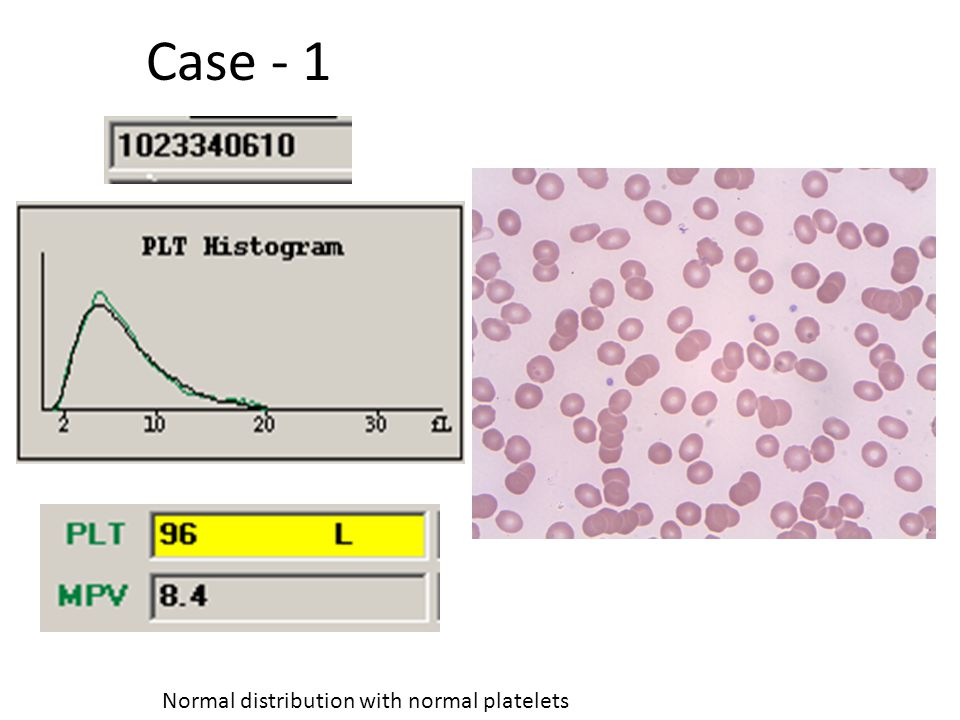 Normal distribution with normal platelets Case - 1