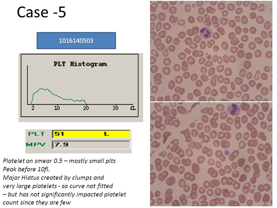 Platelet on smear 0.5 – mostly small plts Peak before 10fl.