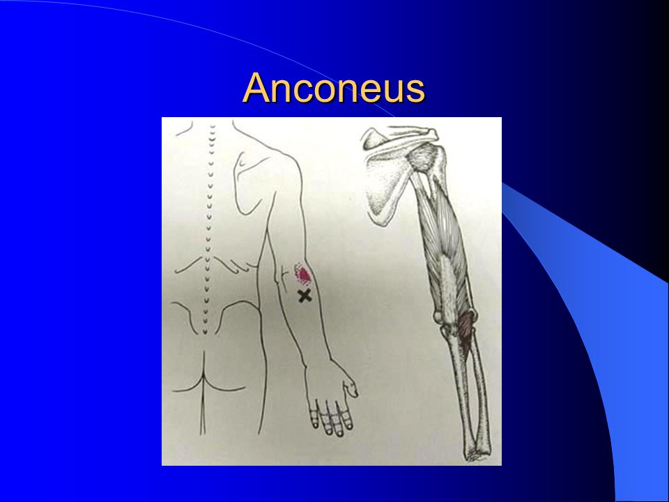 Anconeus Needling.20 x 25mm needle Muscle twitch is vague to moderate