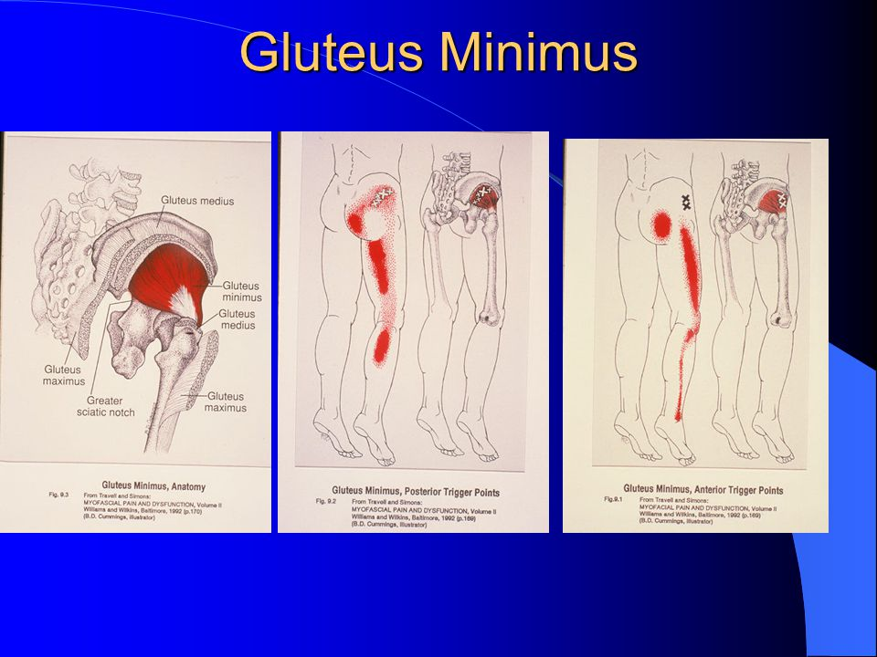 Glute Minimus Patient side lying.30 x 50mm needle Muscle twitch ranges from barely noticeable to fairly strong Can mimic greater trochanteric bursitis