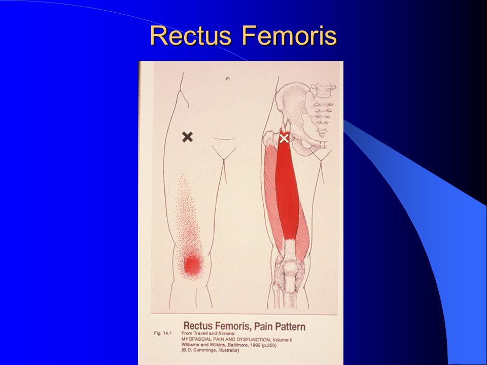 Rectus Femoris Needling Patient supine 30ga x 1.5 or.30 x 50mm Muscle twitch is usually strong