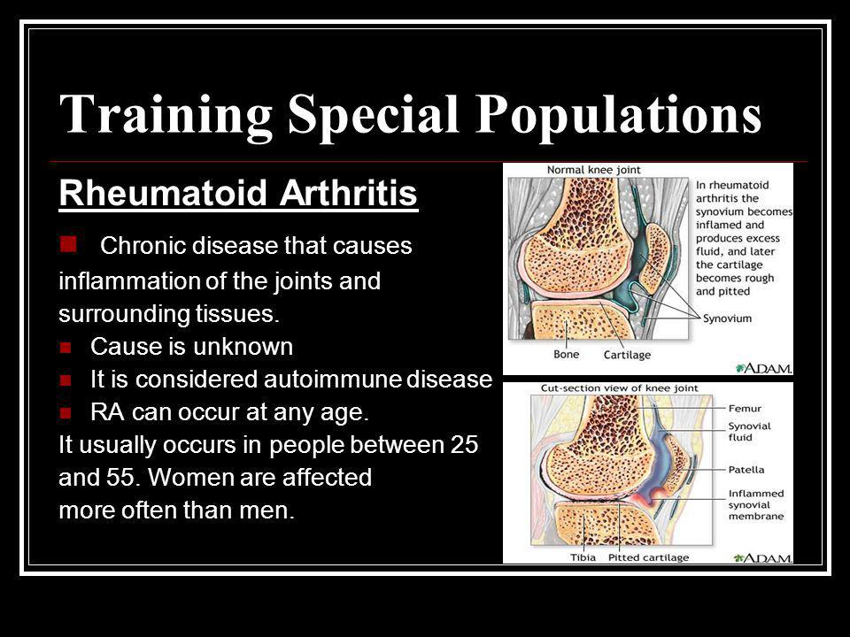 Training Special Populations Rheumatoid Arthritis Chronic disease that causes inflammation of the joints and surrounding tissues. Cause is unknown It
