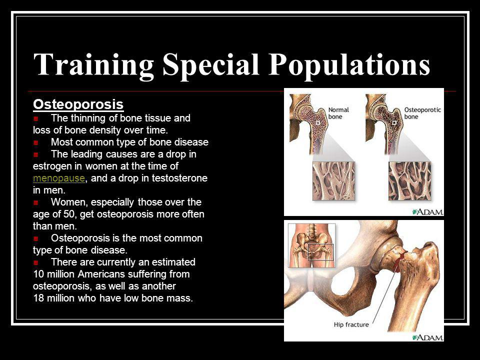Training Special Populations Osteoporosis The thinning of bone tissue and loss of bone density over time. Most common type of bone disease The leading