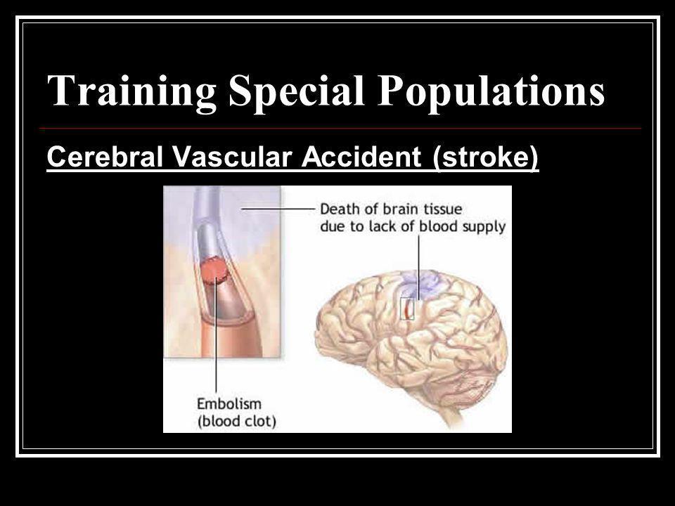 Training Special Populations Cerebral Vascular Accident (stroke)