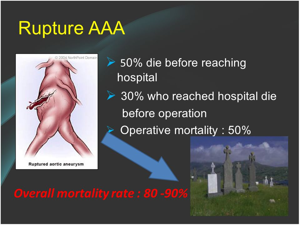 Rupture AAA  5 0% die before reaching hospital  30% who reached hospital die before operation  Operative mortality : 50% Overall mortality rate : 80 -90%