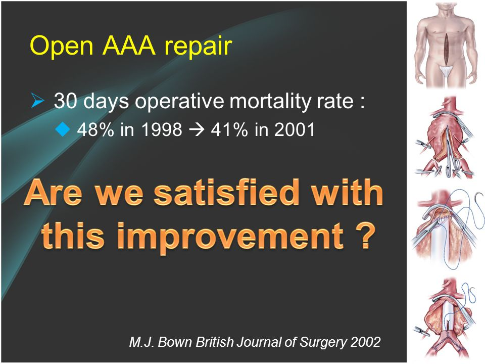 Open AAA repair  30 days operative mortality rate :  48% in 1998  41% in 2001 M.J.