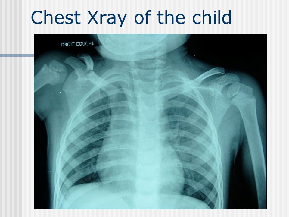 Chest Xray of the child