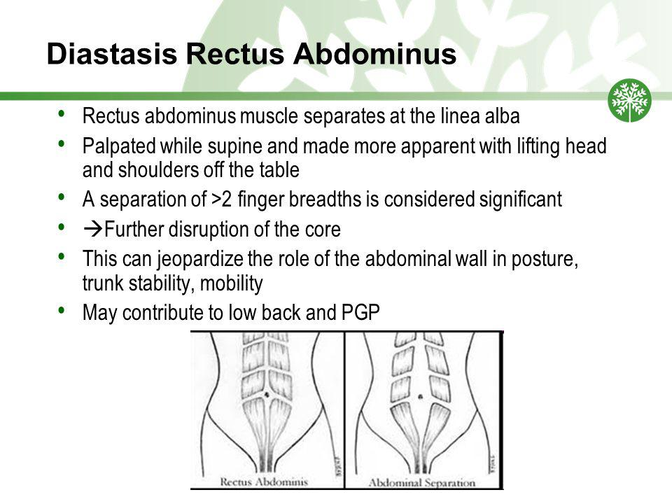Diastasis Rectus Abdominus Rectus abdominus muscle separates at the linea alba Palpated while supine and made more apparent with lifting head and shoulders off the table A separation of >2 finger breadths is considered significant  Further disruption of the core This can jeopardize the role of the abdominal wall in posture, trunk stability, mobility May contribute to low back and PGP