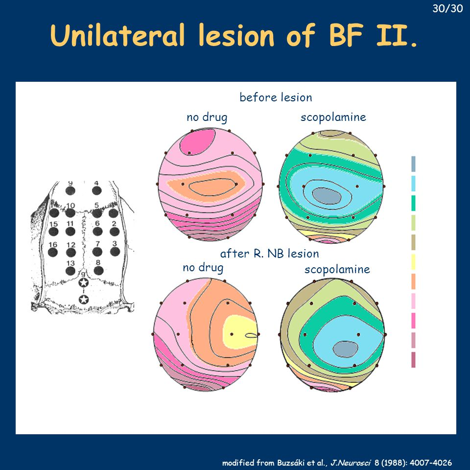 scopolamine no drug before lesion after R. NB lesion modified from Buzsáki et al., J.Neurosci 8 (1988): 4007-4026 Unilateral lesion of BF II. 30/30