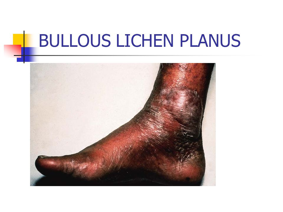 BULLOUS LICHEN PLANUS