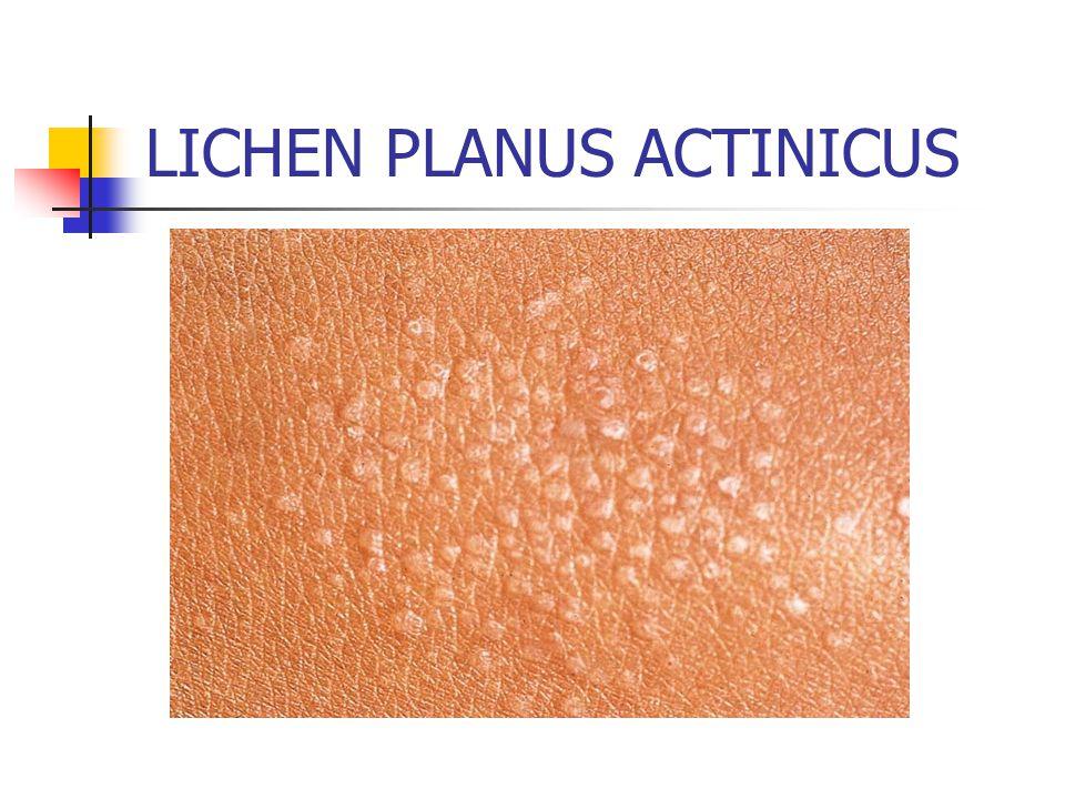 LICHEN PLANUS ACTINICUS