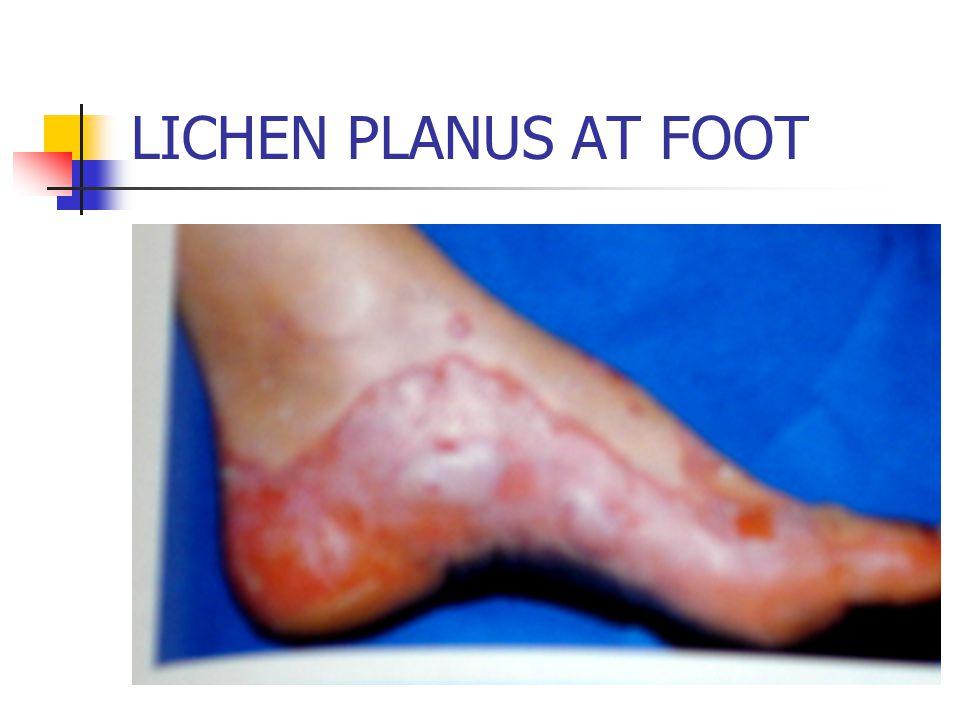 LICHEN PLANUS AT FOOT