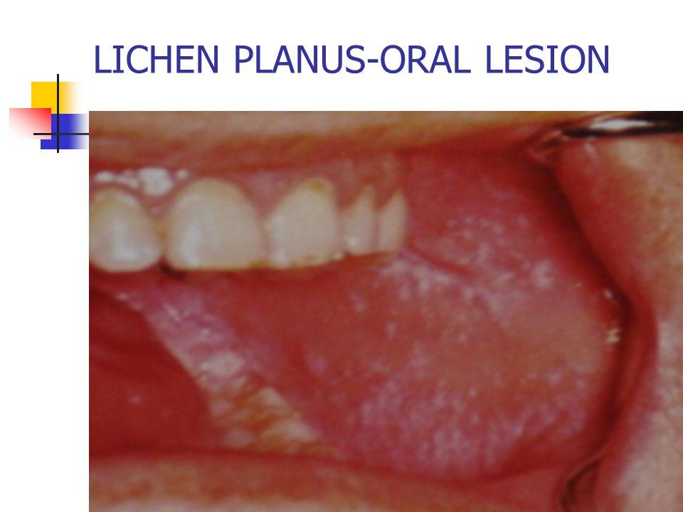 LICHEN PLANUS-ORAL LESION