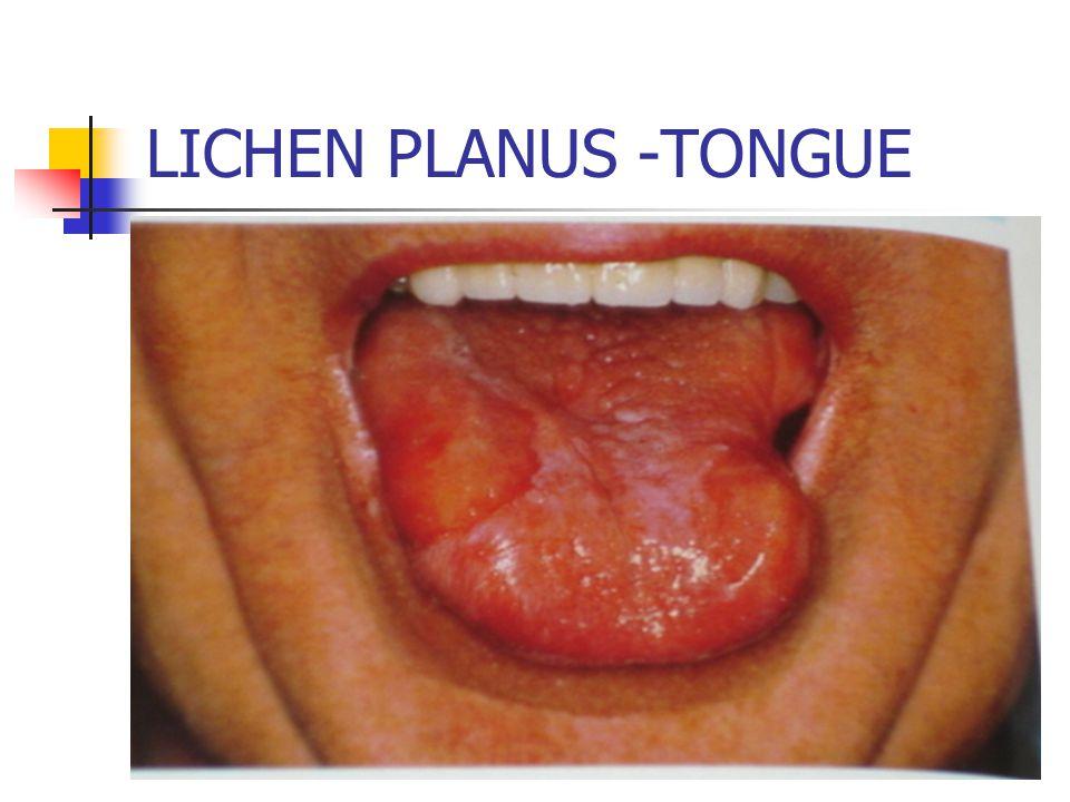 LICHEN PLANUS -TONGUE
