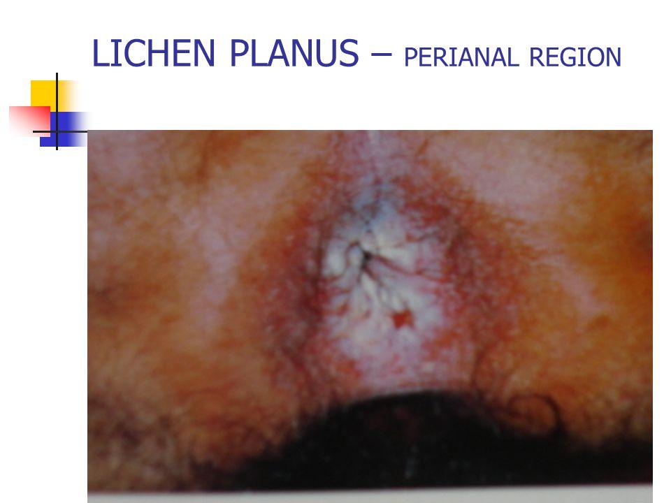 LICHEN PLANUS – PERIANAL REGION