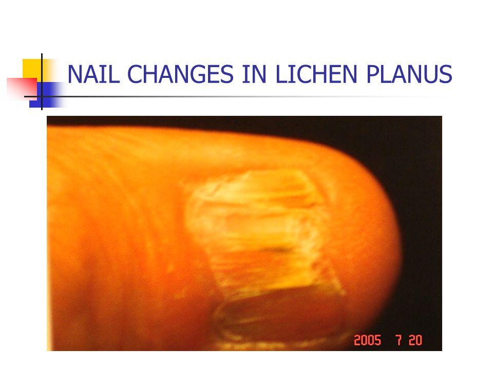 NAIL CHANGES IN LICHEN PLANUS