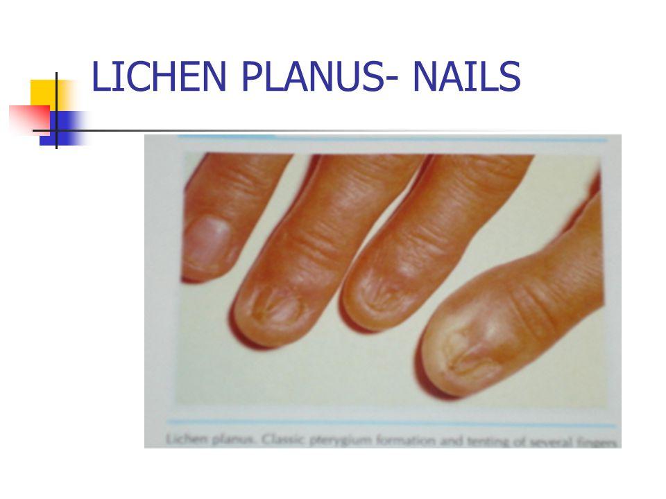 LICHEN PLANUS- NAILS
