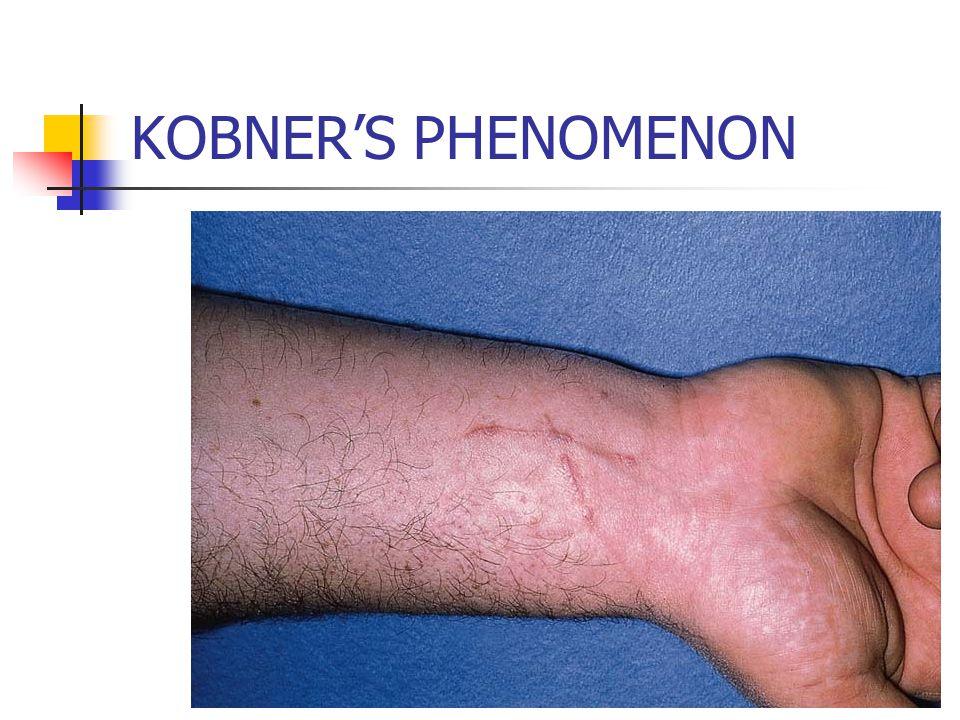 KOBNER'S PHENOMENON