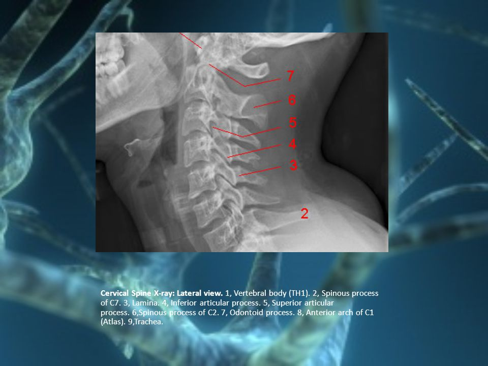 Cervical Spine X-ray: Lateral view. 1, Vertebral body (TH1). 2, Spinous process of C7. 3, Lamina. 4, Inferior articular process. 5, Superior articular