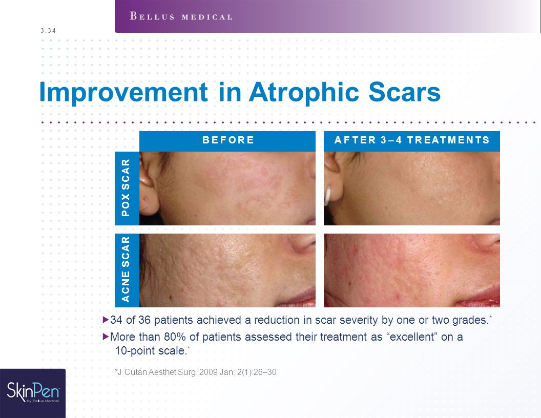 Improvement in Atrophic Scars  34 of 36 patients achieved a reduction in scar severity by one or two grades. *  More than 80% of patients assessed