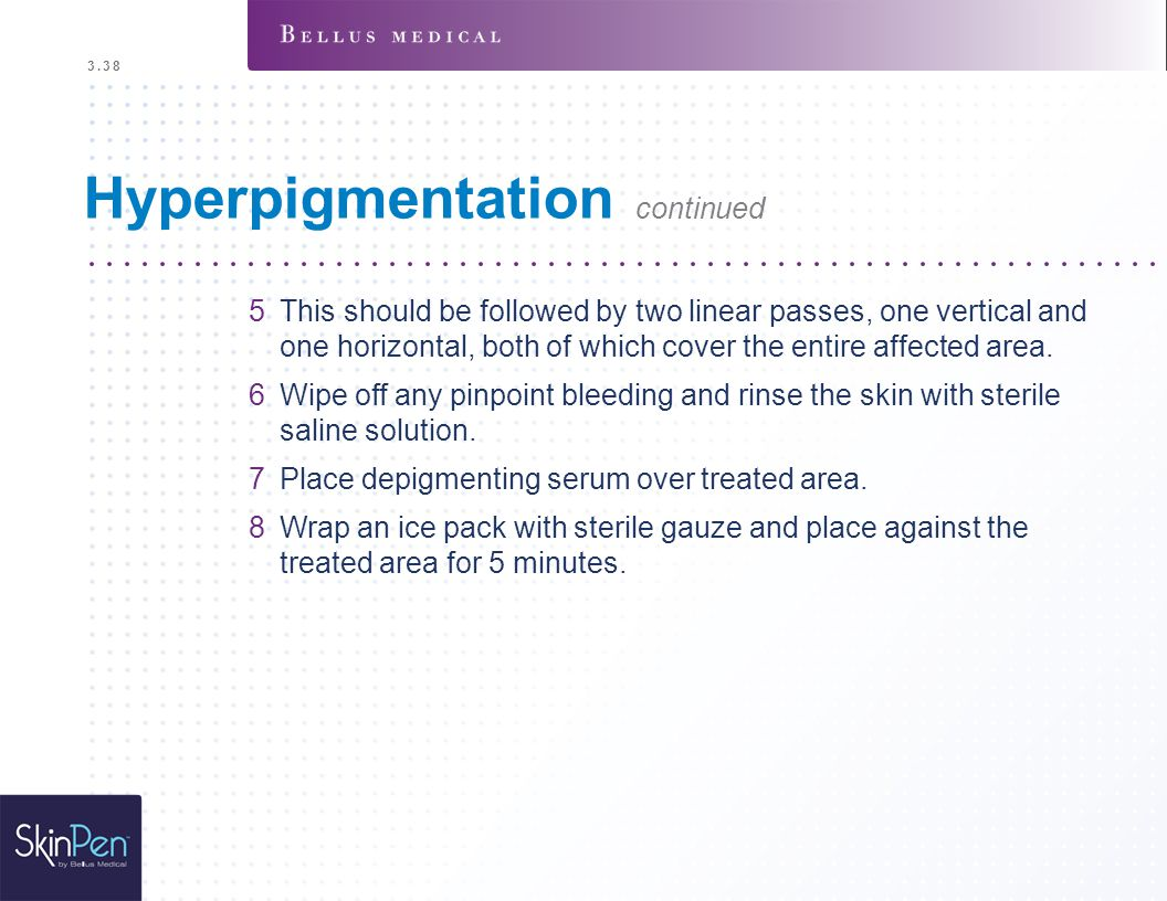 3.38 Hyperpigmentation continued 5This should be followed by two linear passes, one vertical and one horizontal, both of which cover the entire affect