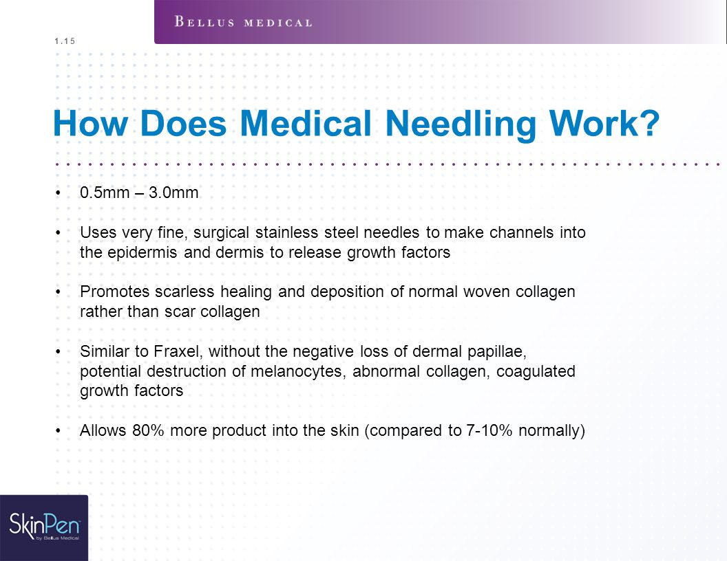 How Does Medical Needling Work? 0.5mm – 3.0mm Uses very fine, surgical stainless steel needles to make channels into the epidermis and dermis to relea
