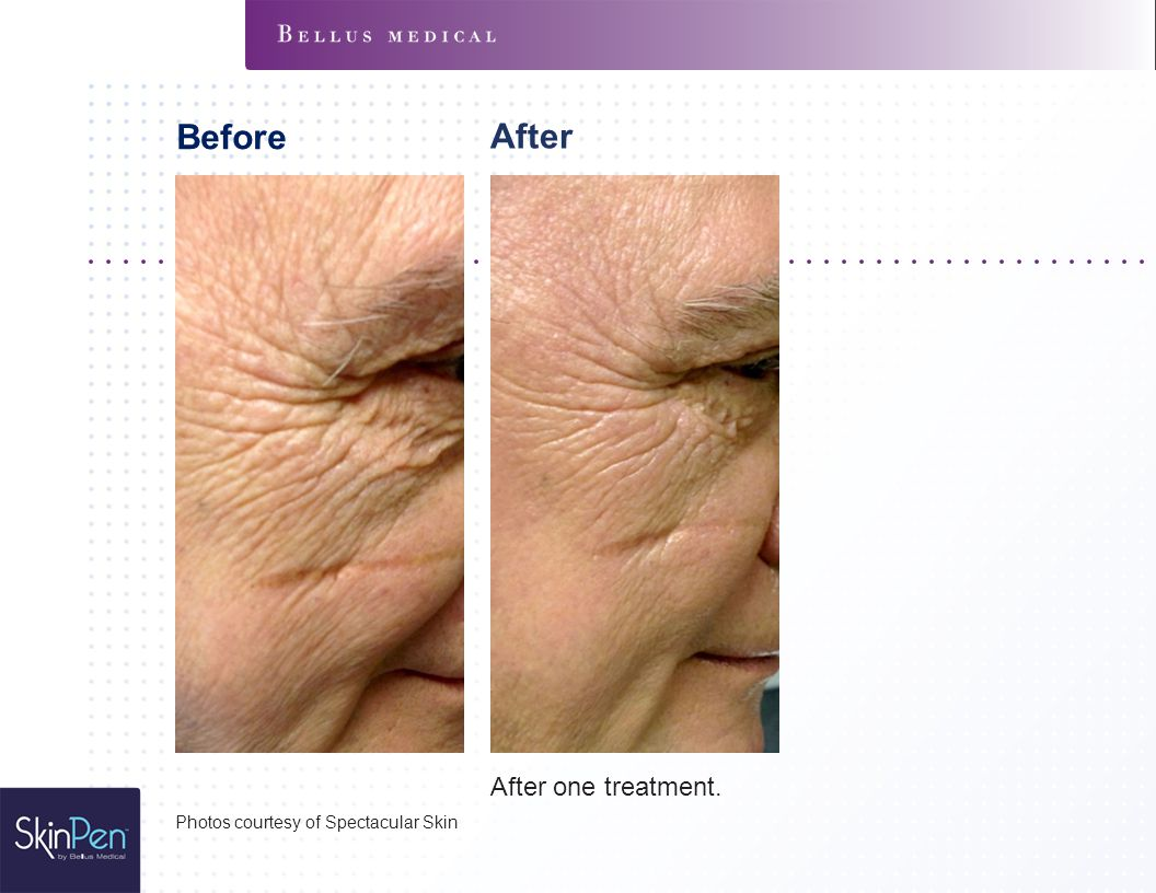 Before After After one treatment. Photos courtesy of Spectacular Skin