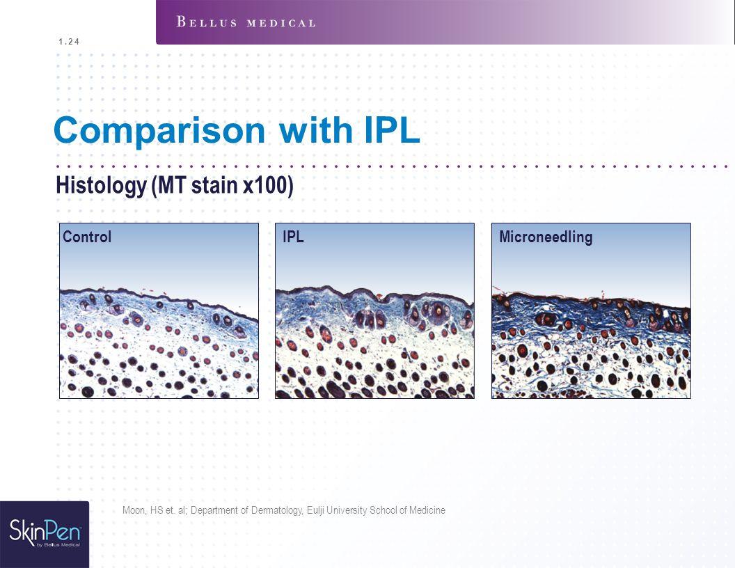 Comparison with IPL Histology (MT stain x100) Control IPLMicroneedling Moon, HS et. al; Department of Dermatology, Eulji University School of Medicine