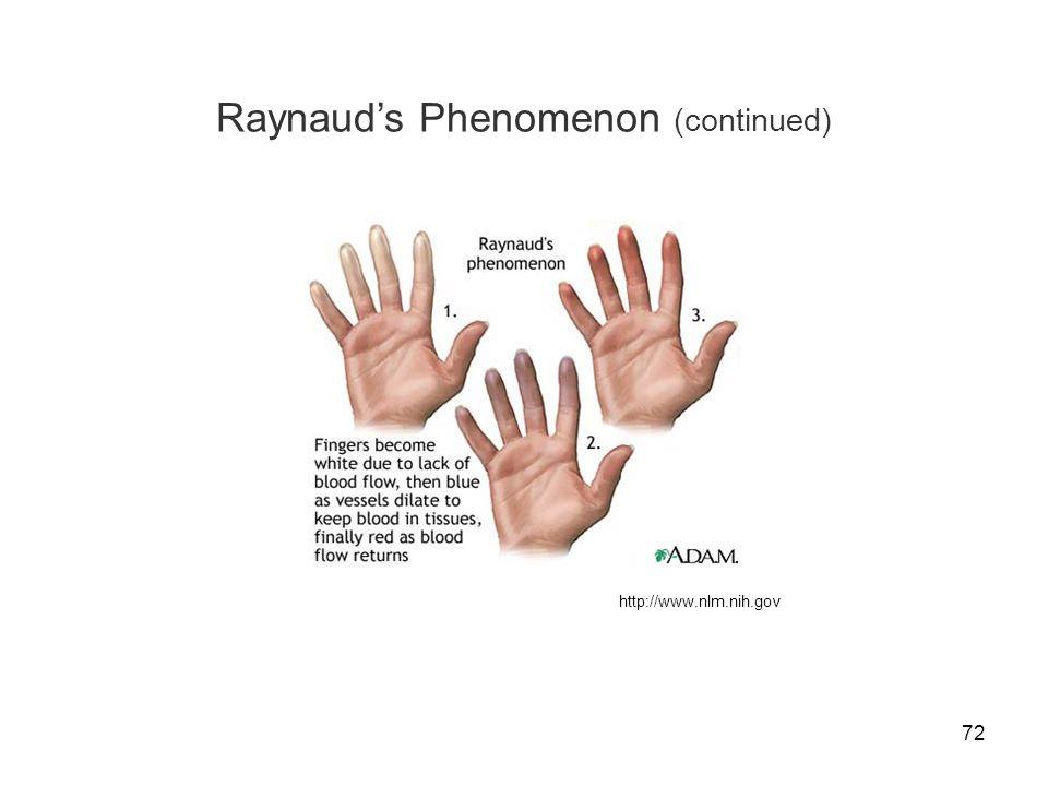 72 Raynaud's Phenomenon (continued) http://www.nlm.nih.gov